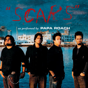 Scars - Acoustic Version cover art