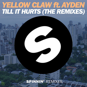 Till It Hurts (feat. Ayden) [The Remixes]