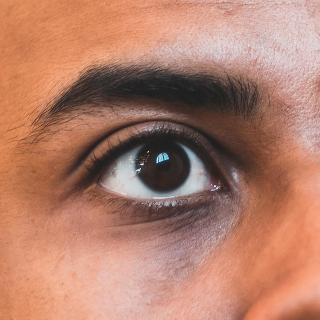 Open Your Optics to Optimism